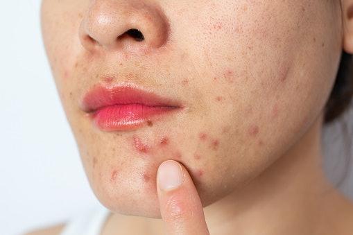 Acne-Prone Skin? Go For Lightweight Oils